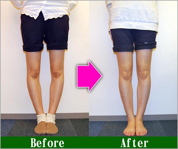 O 脚 改善 【O脚の治し方】O脚を改善するための7つのポイント!【女性必見!】