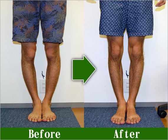 男性O脚改善2