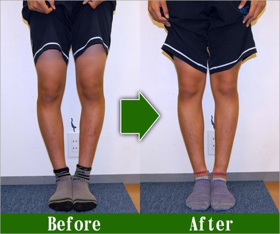 男性O脚改善3